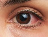 Nháy mắt trái - Giật mắt trái báo hiệu điềm gì