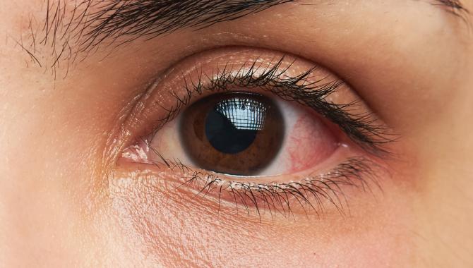 Giải Mã Mắt Giật Liên Tục Là, Nháy Mắt Phải Mí Dưới Liên Tục
